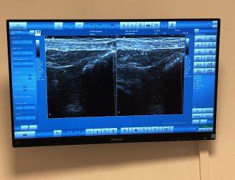 Shockwave Therapie bij Dé Pees-specialist